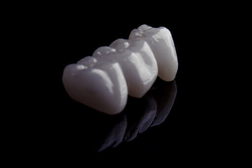 dental-implants-abroad-dental-bridge